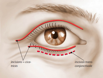 Incisions-blepharoplastie