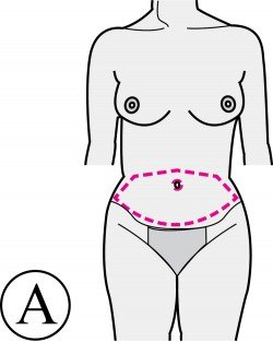 abdominoplastie-incisions