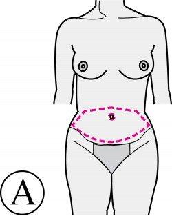 abdominoplastie-incisions