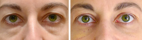 blepharoplastie-photo-avant-apres