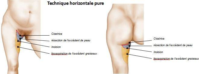 incision lifting cuisses Tunisie
