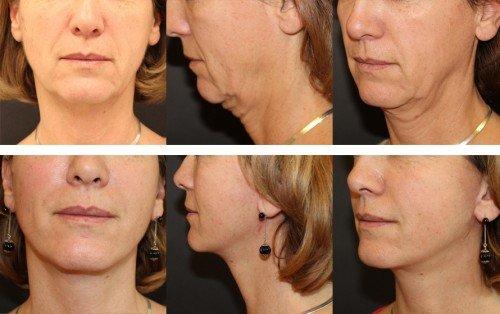 lifting-cervico-facial-1