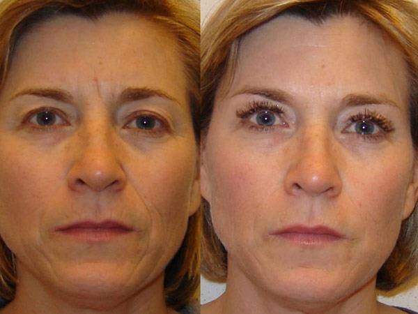 lipofilling-visage-photo-avant-apres