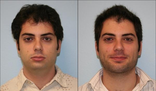 photo-avant-apres-chirurgie-menton