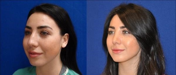 rhinoplastie-photo-avant-apres