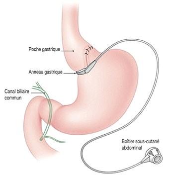 technique-anneau-gastrique
