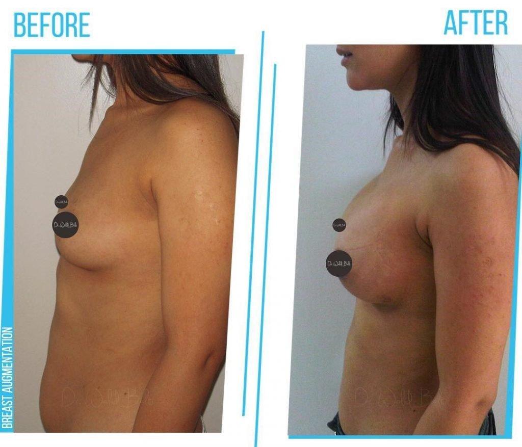 Augmentation mammaire photos avant apres
