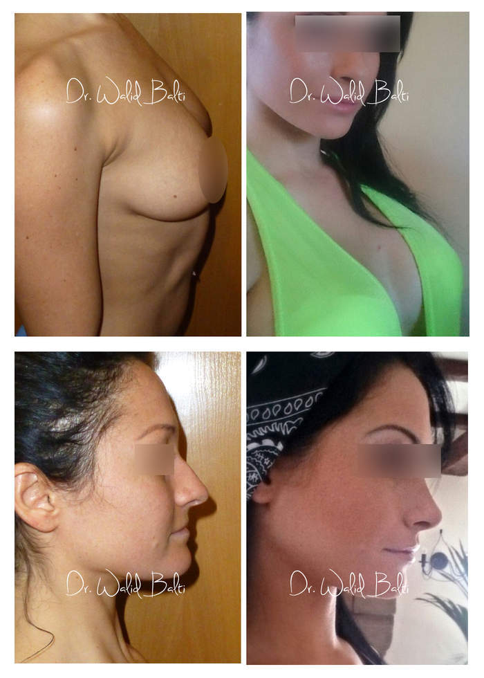 augmentation mammaire rhinoplastie - dr walid balti - venus estetika