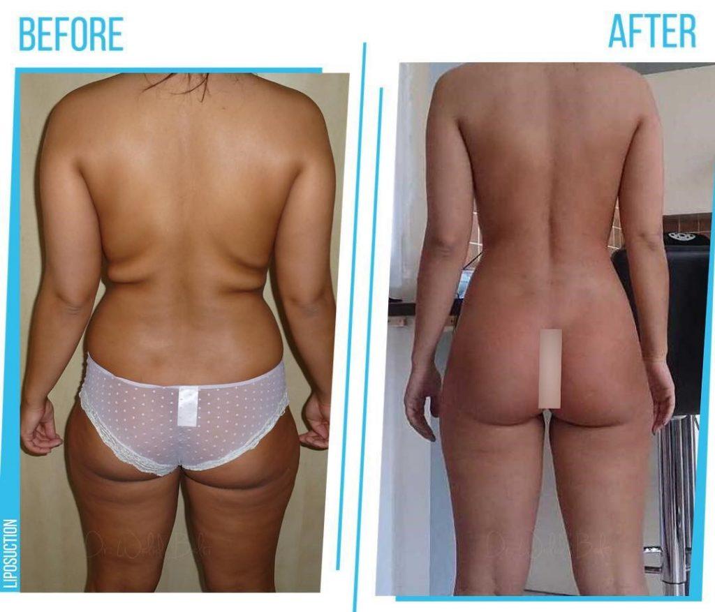 photos avant apres liposuccion