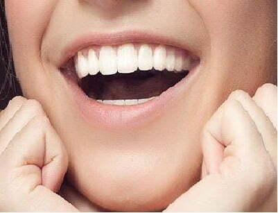 Facette dentaire Tunisie dents blanches et alignées