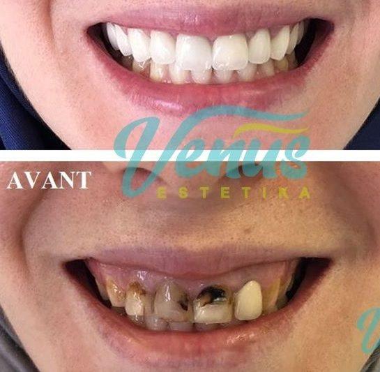 Pose de Facette Dentaire en Tunisie